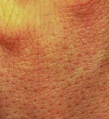 Le microbiote cutané protège de l'allergie !