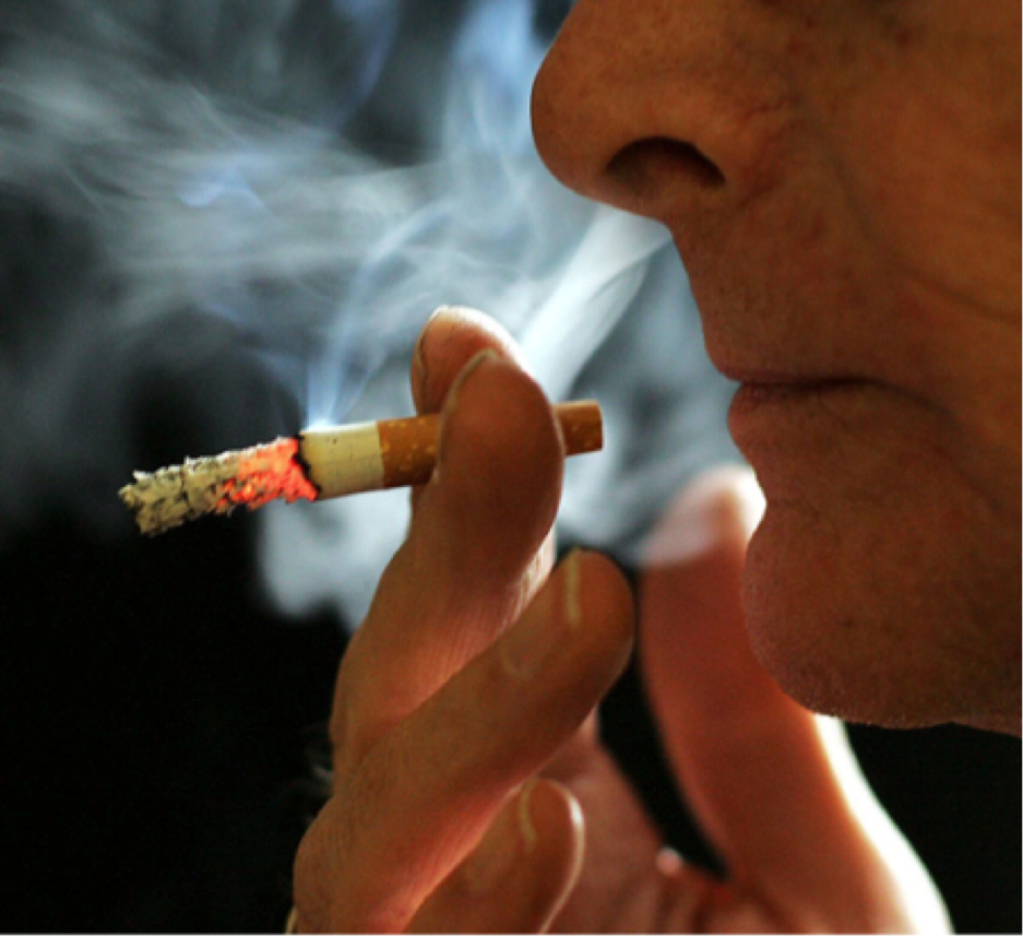 L'arrêt facile du tabac, un prodrome de la maladie de Parkinson