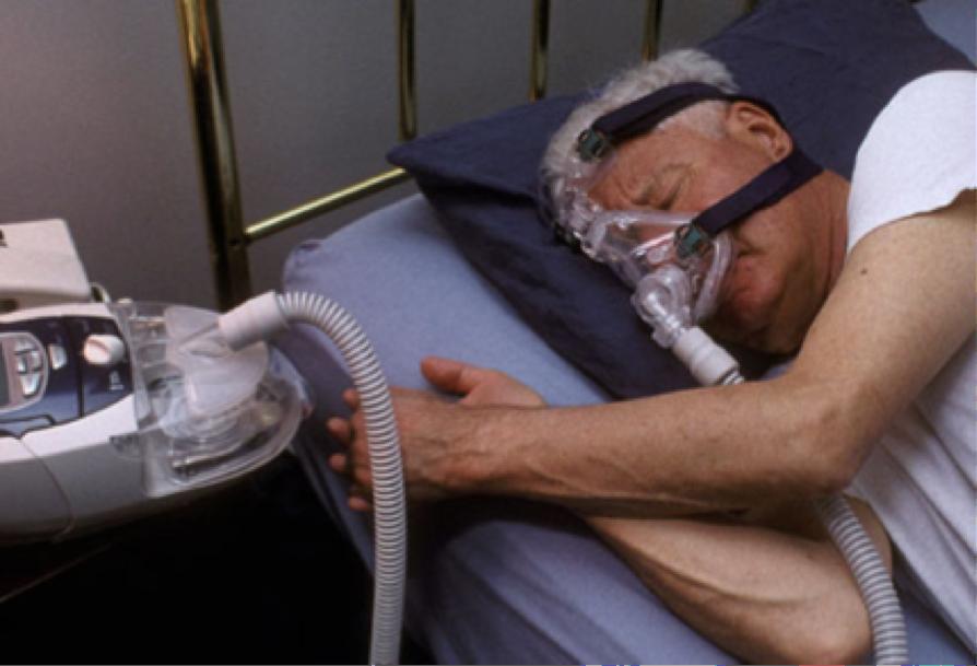 De l'intérêt du traitement de l'apnée du sommeil chez le malade atteint d'Alzheimer