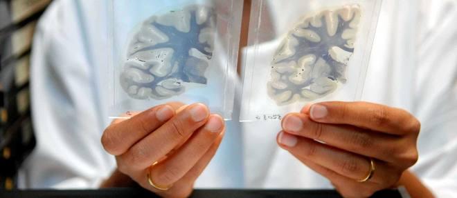 « Alzheimer: et si une mycose était à l'origine de la maladie? »