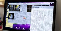 Le cerveau adapte la vue en fonction du cœur