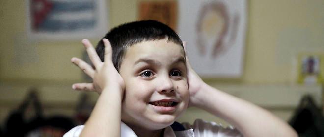 """Autisme: un """"faux pli"""" dans le cerveau?"""