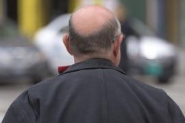 Des dépressions liées à un médicament contre la chute des cheveux