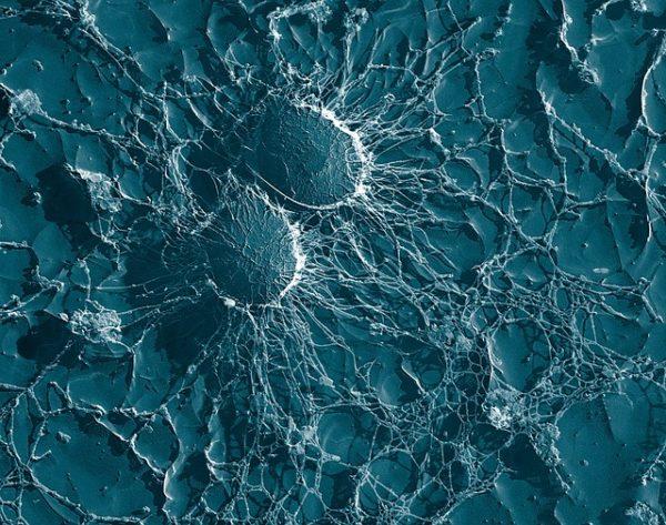 Des staphylocoques du microbiome cutané protègeraient contre les cancers de la peau