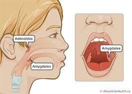 L'ablation des amygdales augmente le risque de certaines maladies