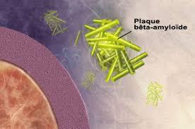 Maladie d'Alzheimer : le virus de l'herpès cause ou solution ?